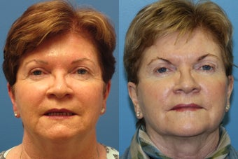 Laser Resurfacing with Exilis tightening