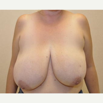 45-54 year old woman treated with Breast Reduction before 3103121