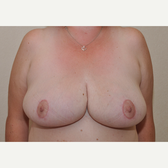 45-54 year old woman treated with Breast Reduction after 3103121