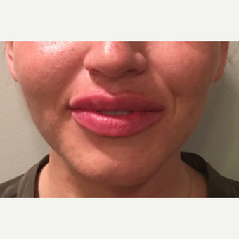 25 year old woman treated with 1 mL Restylane-L to the upper and lower lips after 3129584