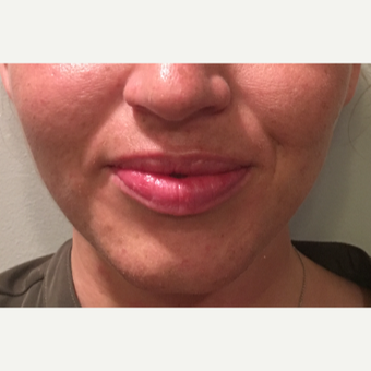 25 year old woman treated with 1 mL Restylane-L to the upper and lower lips before 3129584