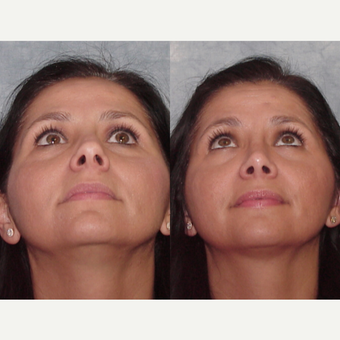 35-44 year old woman treated with Rhinoplasty after 3224091
