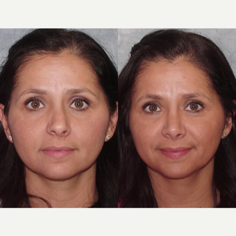 35-44 year old woman treated with Rhinoplasty before 3224091
