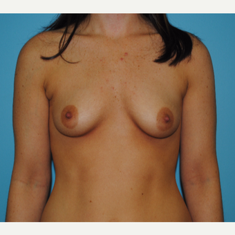 25-34 year old woman treated with Breast Augmentation before 3041046
