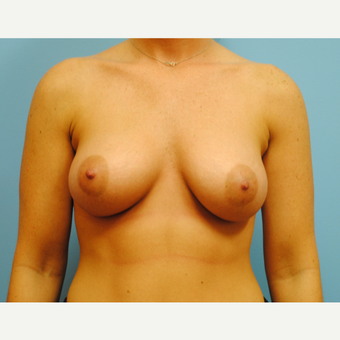 25-34 year old woman treated with Breast Augmentation after 3041046