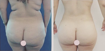 35-44 year old woman treated with Liposculpture before 2834333