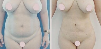 35-44 year old woman treated with Liposculpture after 2834333
