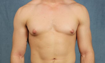 23 year old with gynecomastia treated with chest wall liposuction and pull-through excision via minimal incisions before 1383605