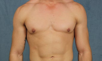 23 year old with gynecomastia treated with chest wall liposuction and pull-through excision via minimal incisions after 1383605