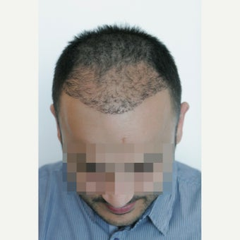 33 years old man treated with FUE Hair Transplant,  3071 Grafts before 2453996