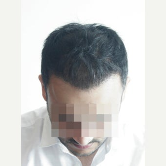 33 years old man treated with FUE Hair Transplant,  3071 Grafts after 2453996