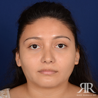 Rhinoplasty after 1357431