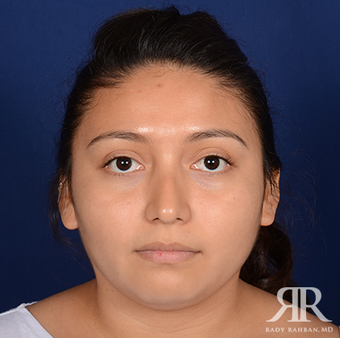 Rhinoplasty before 1357431