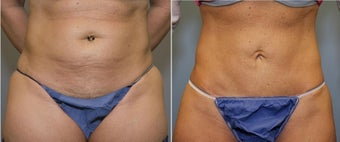 43 year old female with mini tummy tuck before 644122