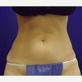 52 year old woman treated with SculpSure in abdomen before 2814889