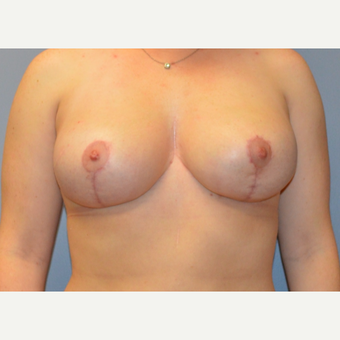 25-34 year old woman treated with Breast Reduction after 3161475
