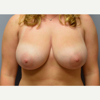 25-34 year old woman treated with Breast Reduction before 3161475