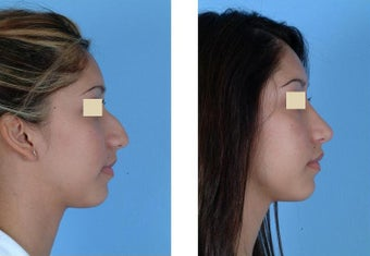 Closed Rhinoplasty before 93642