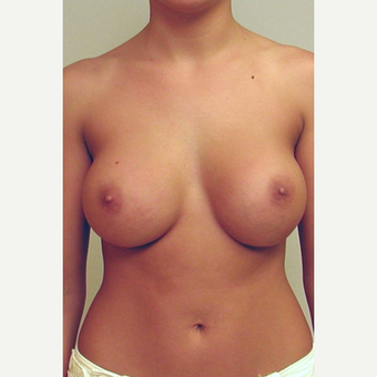 Breast Implants after 3241533