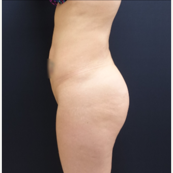 25-34 year old woman treated with Butt Lift using 712cc Round Silicone Implants before 3259577