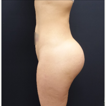 25-34 year old woman treated with Butt Lift using 712cc Round Silicone Implants after 3259577