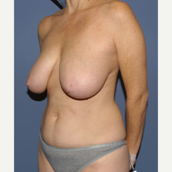 35-44 year old woman treated with Mommy Makeover before 3512301