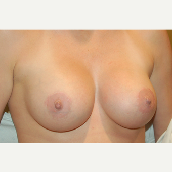 35-44 year old woman treated with Breast Implants after 3319890