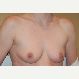 35-44 year old woman treated with Breast Implants before 3319890