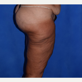 45-54 year old woman treated with Thigh Lift before 3755287