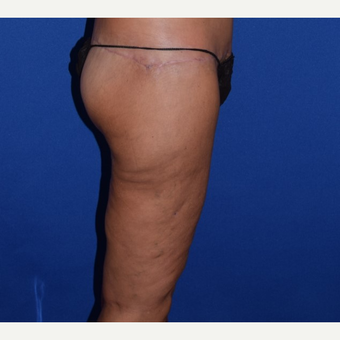 45-54 year old woman treated with Thigh Lift after 3755287