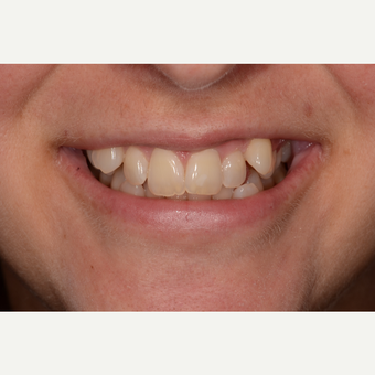 45-54 year old woman treated with Invisalign before 3736030