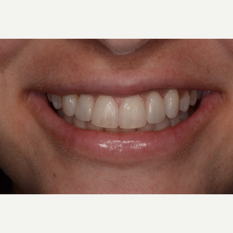 45-54 year old woman treated with Invisalign after 3736030