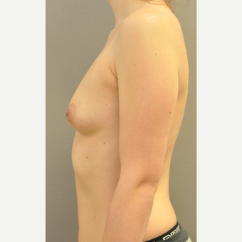 18-24 year old woman treated with Breast Augmentation before 3842577
