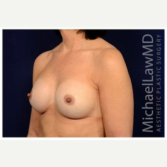 45-54 year old man treated with Inspira Breast Implants after 1851132