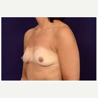 45-54 year old man treated with Inspira Breast Implants before 1851132