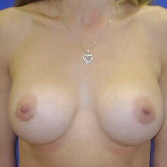 450 cc Silicone Breast Implants after 2451725