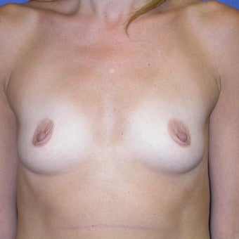 450 cc Silicone Breast Implants before 2451725