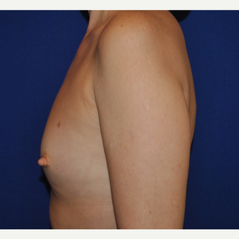 50 year old woman treated with Breast Augmentation before 3776272