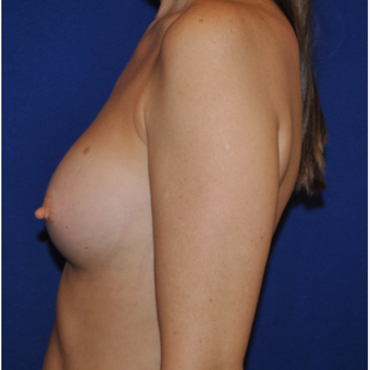 50 year old woman treated with Breast Augmentation after 3776272