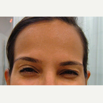 Botox® after 3293051