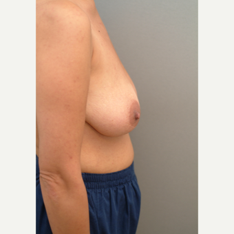 42 year old woman treated with Breast Lift before 3543725