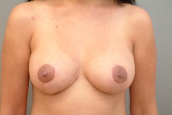42 year old woman treated with Breast Lift 3543725