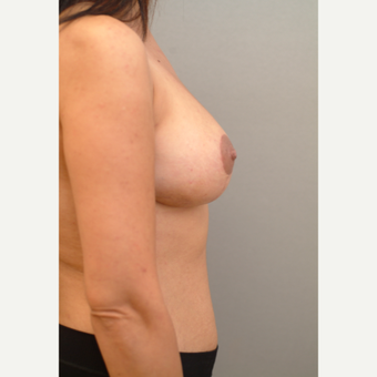 42 year old woman treated with Breast Lift after 3543725