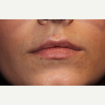 18-24 year old woman treated with Lip Augmentation before 3147336
