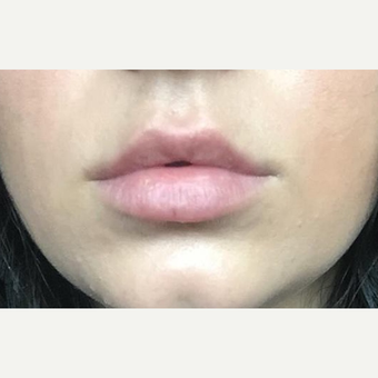 18-24 year old woman treated with Lip Augmentation after 3147336