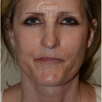 45-54 year old woman treated with Facelift after 3294340