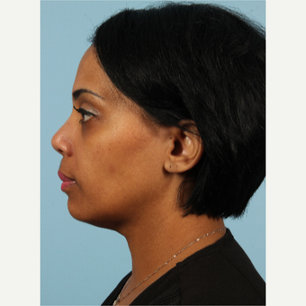 35-44 year old woman treated with Kybella after 3464282