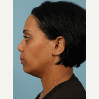 35-44 year old woman treated with Kybella before 3464282