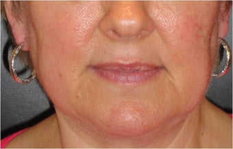 Juvederm before 686398