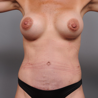 35-44 year old woman treated with Mommy Makeover after 3492855